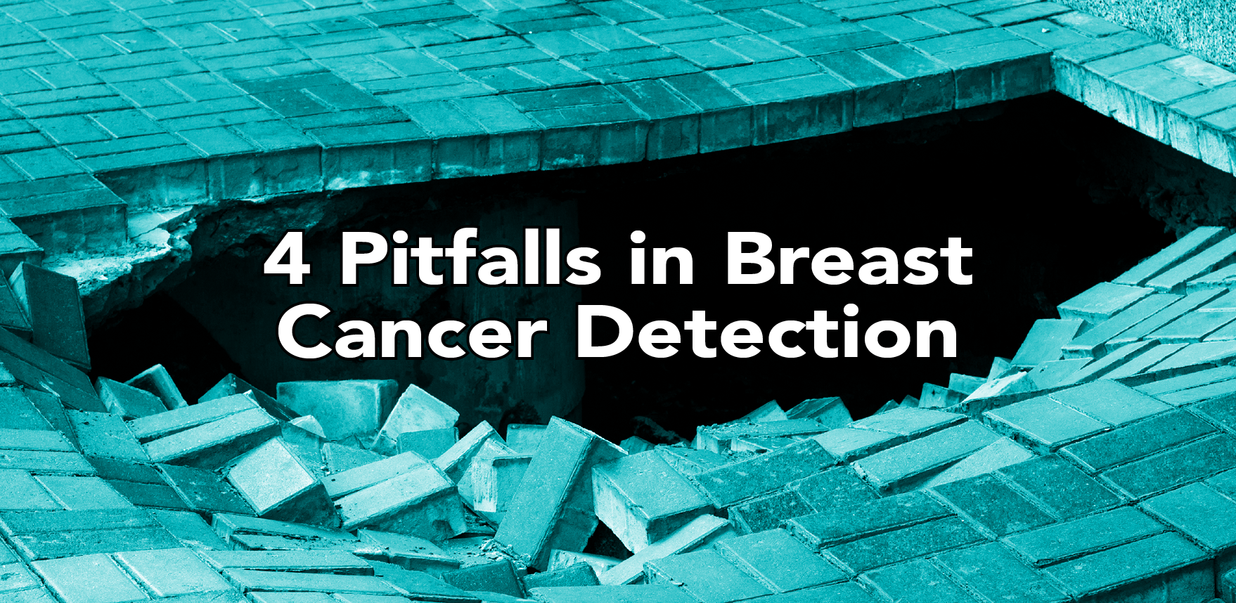Pitfalls-in-breast-cancer-detection.png